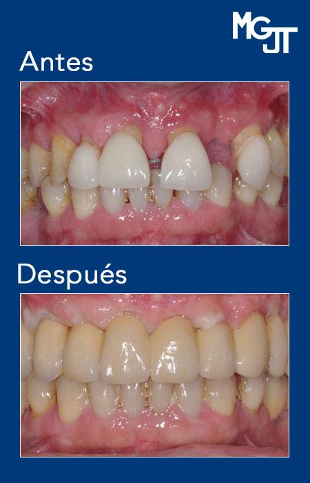 mgjt_implantologia_6